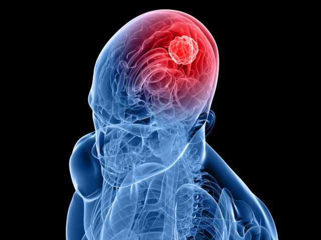 Сотовые телефоны могут вызывать опухоли головного мозга