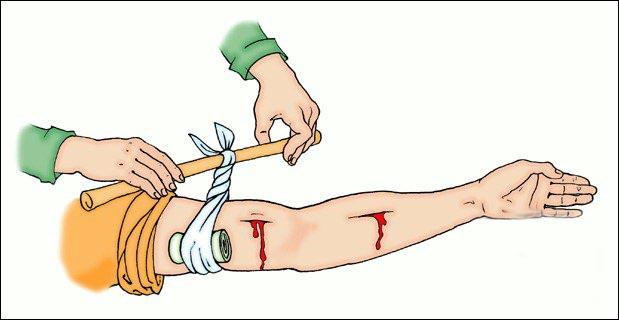Оказание помощи при переломах
