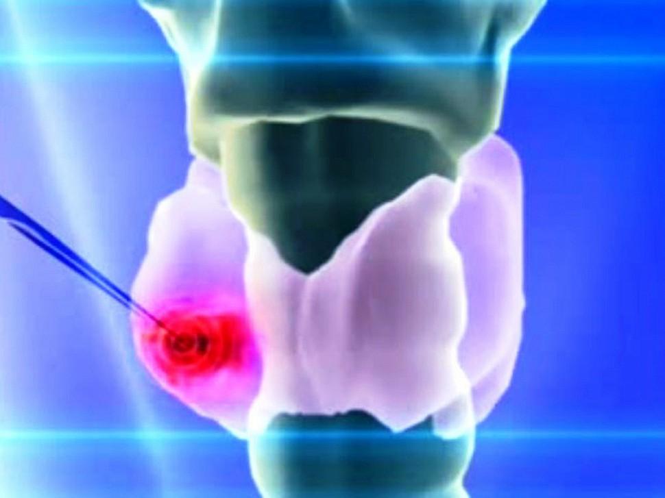 Специалисты установили причину возникновения рака щитовидной железы