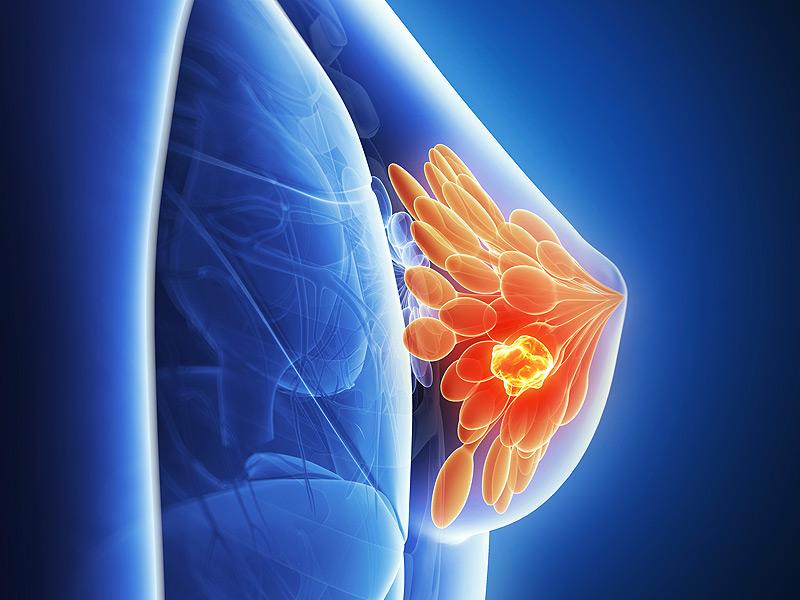 Риск рака молочной железы зависит от профессии
