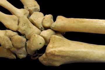 Стимуляция роста костей повышает риск возникновения рака