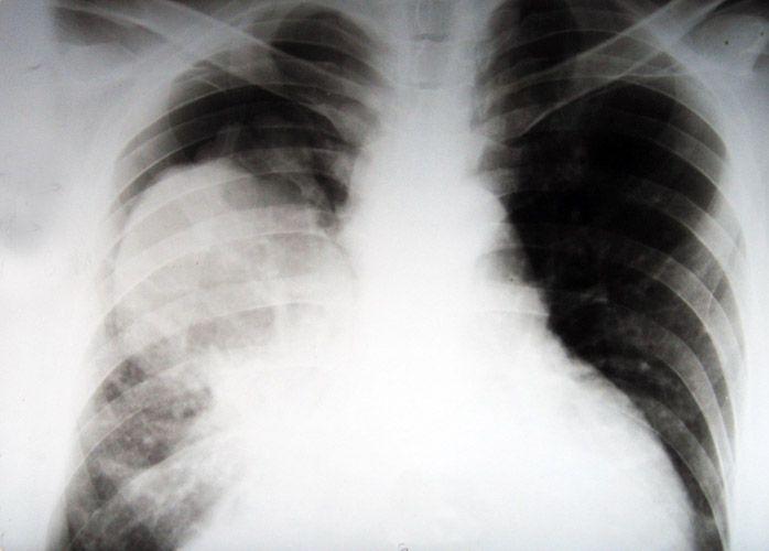 Уникальный тест диагностирует рак легких даже на самой ранней стадии развития