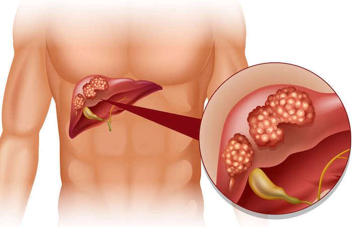 Цирроз печени: признаки и лечение