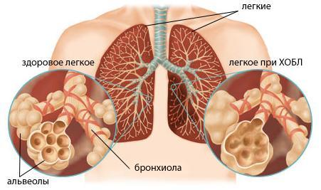 ХОБЛ — Болезнь легких