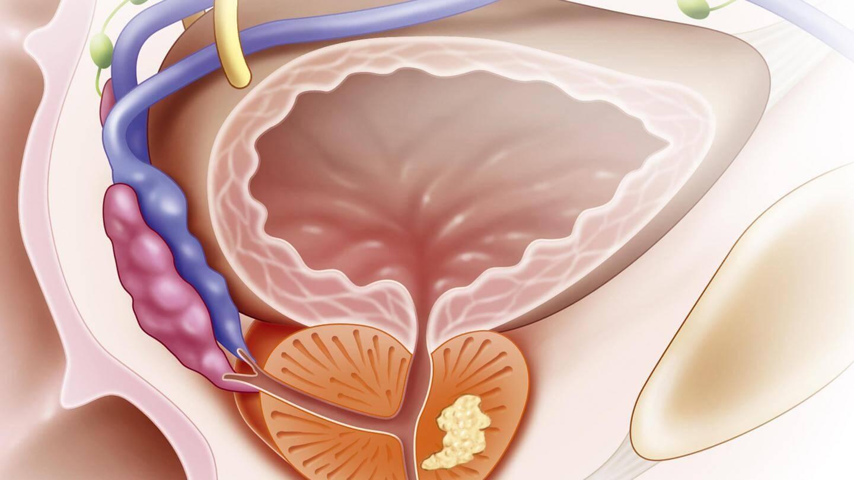 Хронический простатит массаж аналоги препаратов от простатита