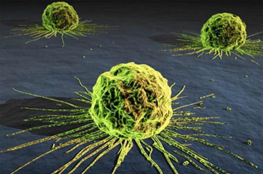 Трехмерное изображение рака может стать полезным инструментом его лечения
