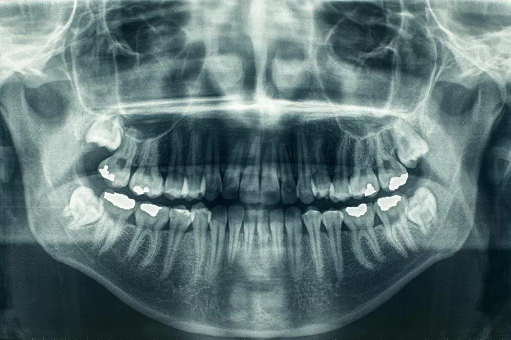 Взаимосвязь между рентгеном зубов и риском возникновения опухоли мозга