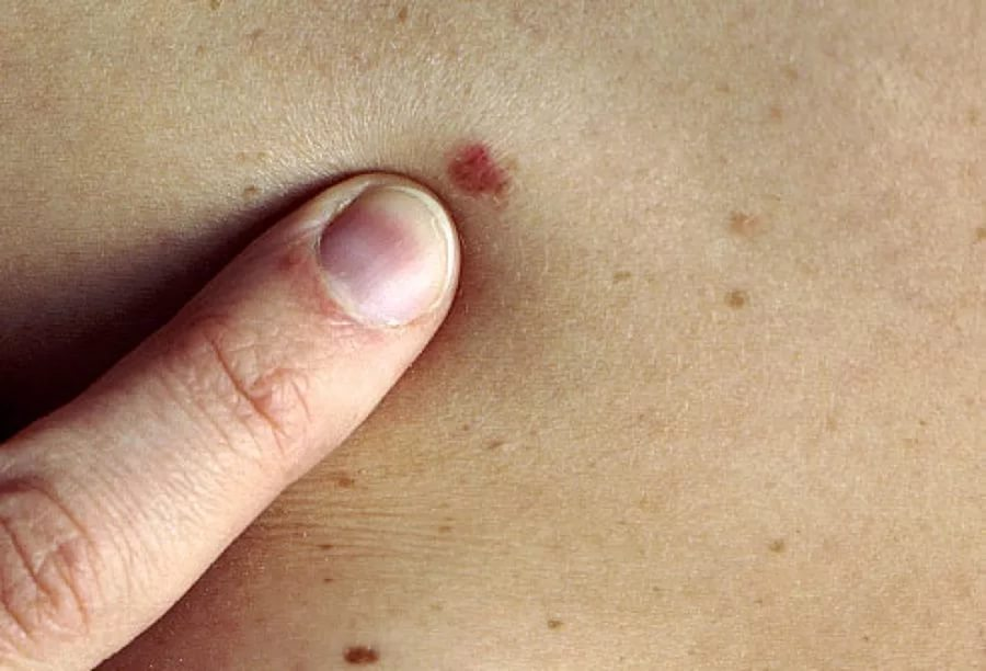 Каждый пятый американец страдает раком кожи