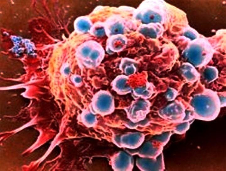 Международная группа ученых выдвинула новую концепцию возникновения рака