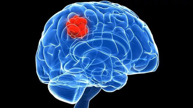 По сетчатке глаз можно определить опухоль мозга