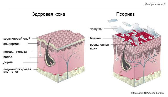 Псориаз – обнаружение и лечение