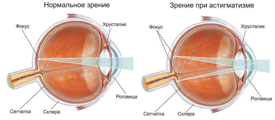 Астигматизм – особенность строения глаза или заболевание?