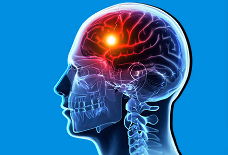 Виды инсульта и лечение