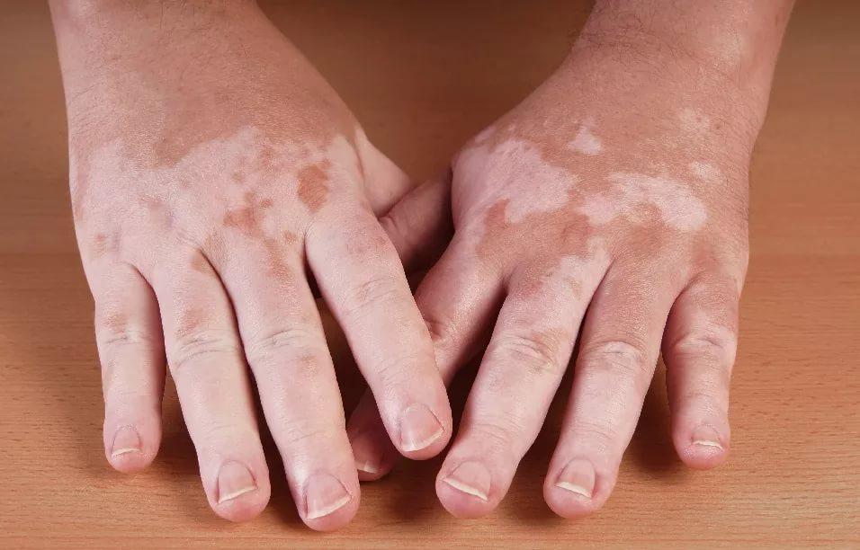 Витилиго снижает риск возникновения рака кожи