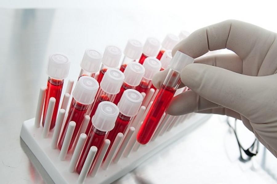 Простой анализ определит наличие рака