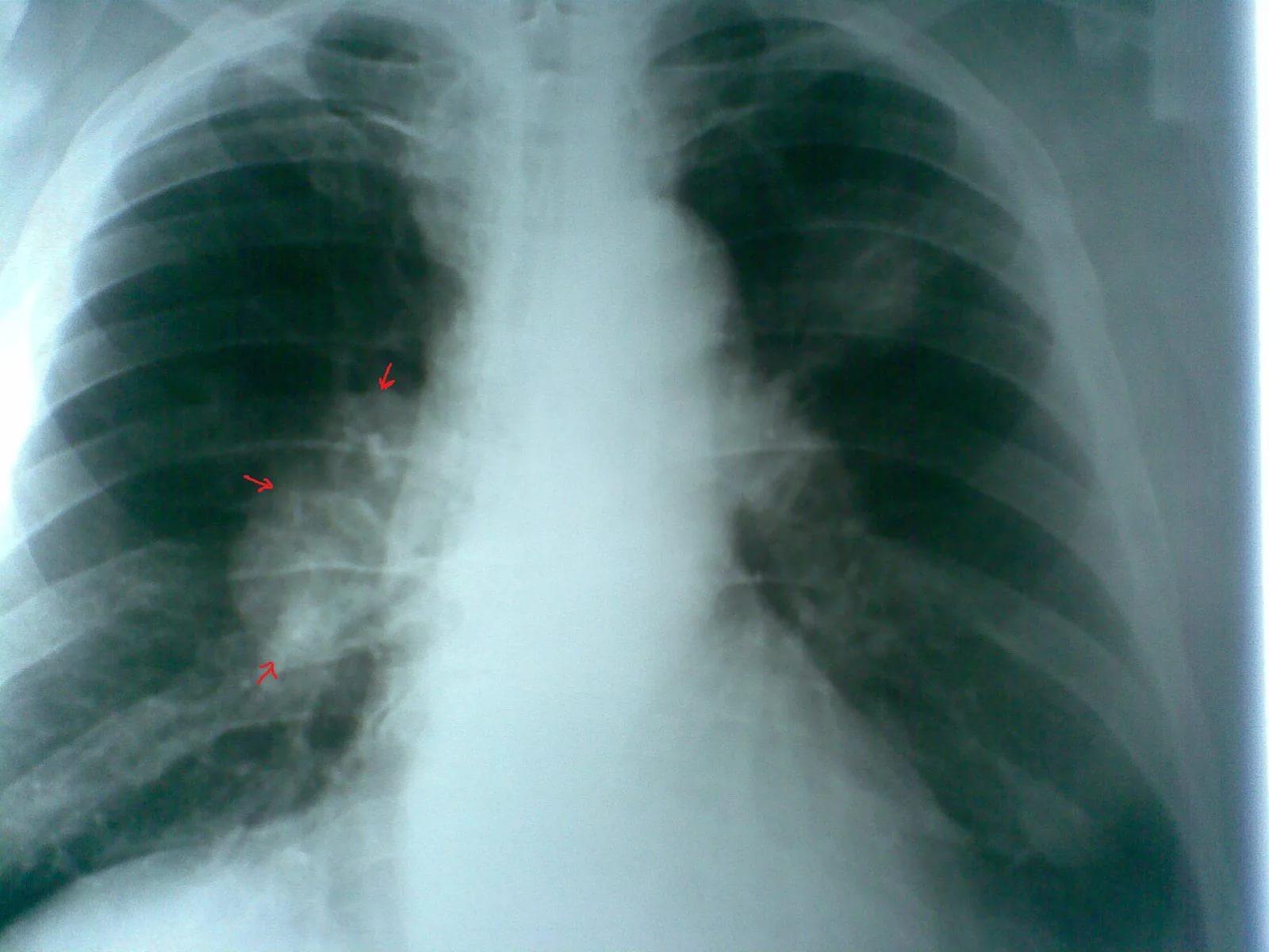 Какие симптомы свидетельствуют о начале развития рака легких