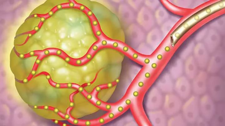 Велипариб не смог доказать эффективность в терапии НМРЛ и РМЖ