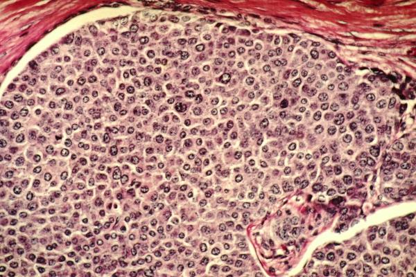 Раковые опухоли разогревают до самуничтожения