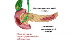 Как лечить при обострении поджелудочной железы