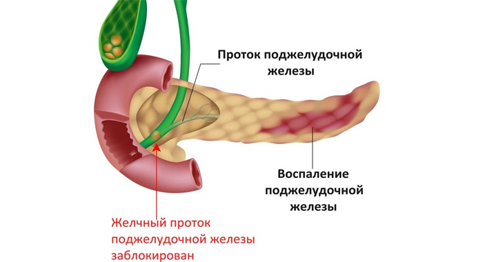 Болезнь поджелудочной железы.Признаки воспалительного процесса поджелудочной железы. Методы лечения панкреатита