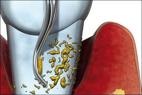 Болезнь зубов и десен