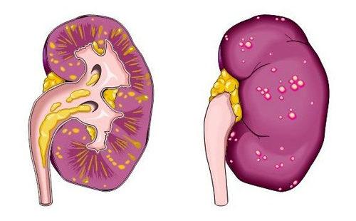 Острый пиелонефрит: факторы риска, симптомы и основы лечения