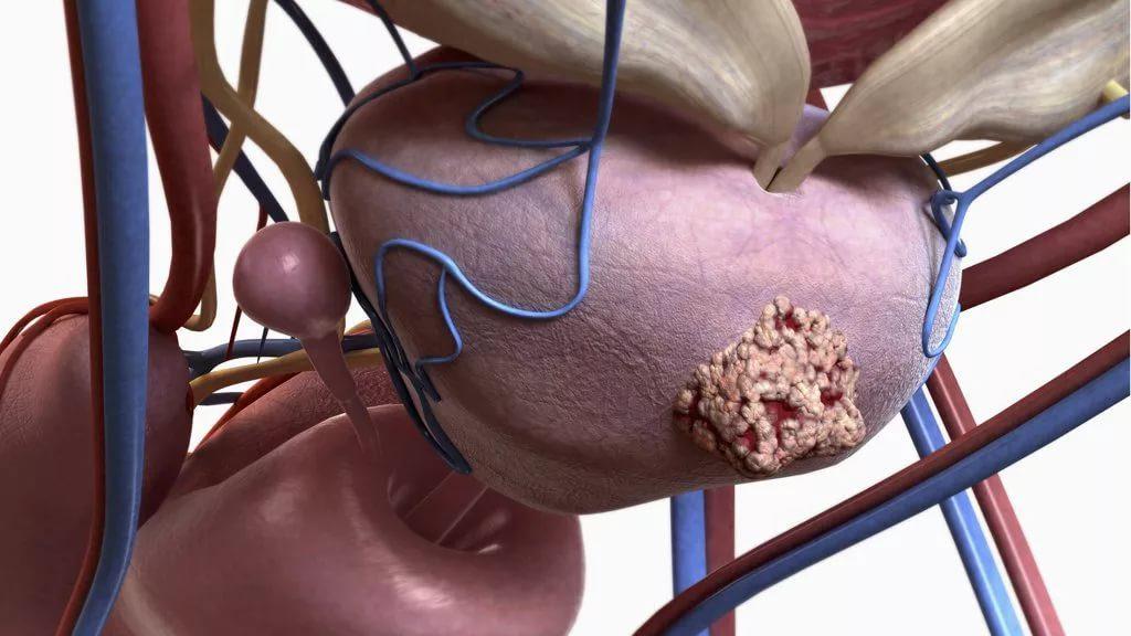 Лысые мужчины менее подвержены возникновению рака простаты