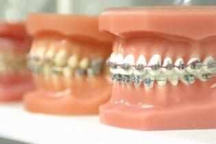 Современные методы ортодонтического лечения