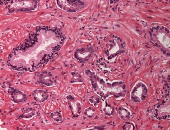 В США одобрен препарат для лечения прогрессирующей гепатоклеточной карциномы