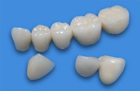 Особенности применения зубных коронок