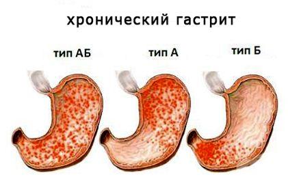 Гастрит — воспаление слизистой оболочки желудка