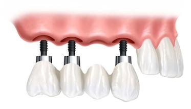 Современные методы установки зубов