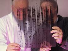 Исследователи нашли «переключатель», отвечающий за рост опухолей