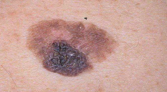 Открыт новый механизм, способствующий возникновению рака кожи