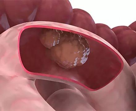 Найден маркер, показывающий, насколько агрессивно будет протекать рак кишечника
