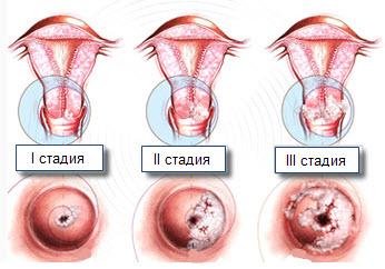 Дисплазия – предраковое состояние шейки матки