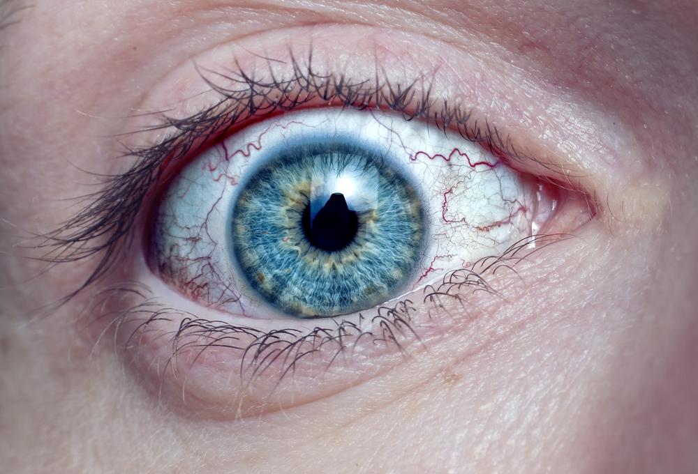 Могут ли контактные линзы стать причиной кератита