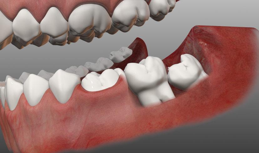 Зуб мудрости: удалять нельзя оставить?