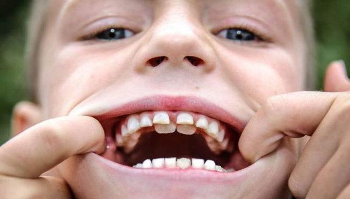 Психология и зубы