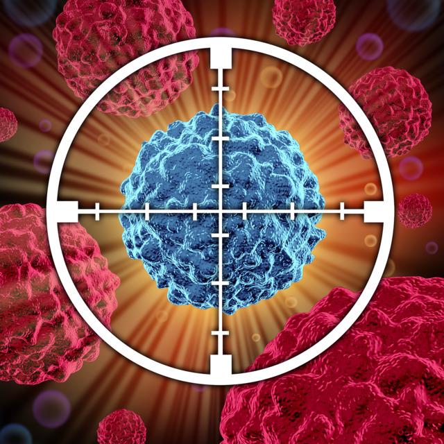 Во Франции разработан несложный тест, предсказывающий рецидив рака