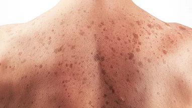 Найден новый вирус рака кожи