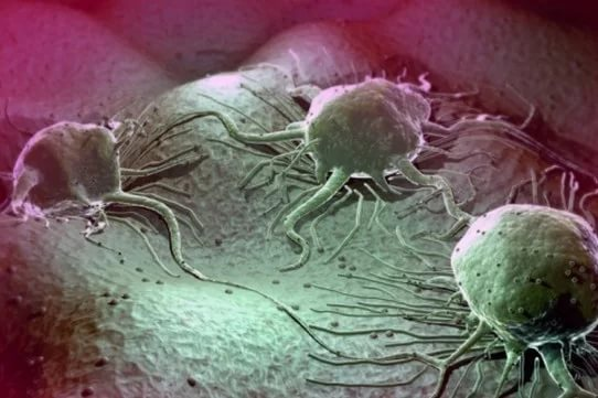Рак — преимущественно современная болезнь
