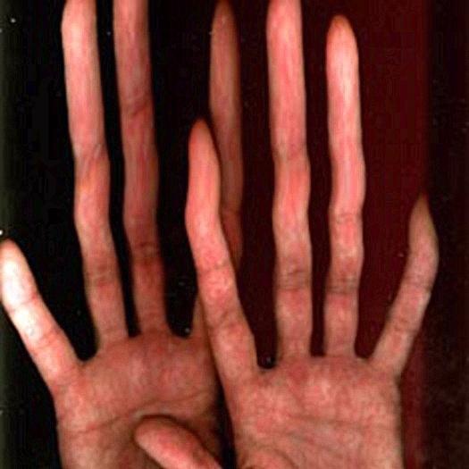 Мужчины с длинным указательным пальцем реже болеют раком простаты