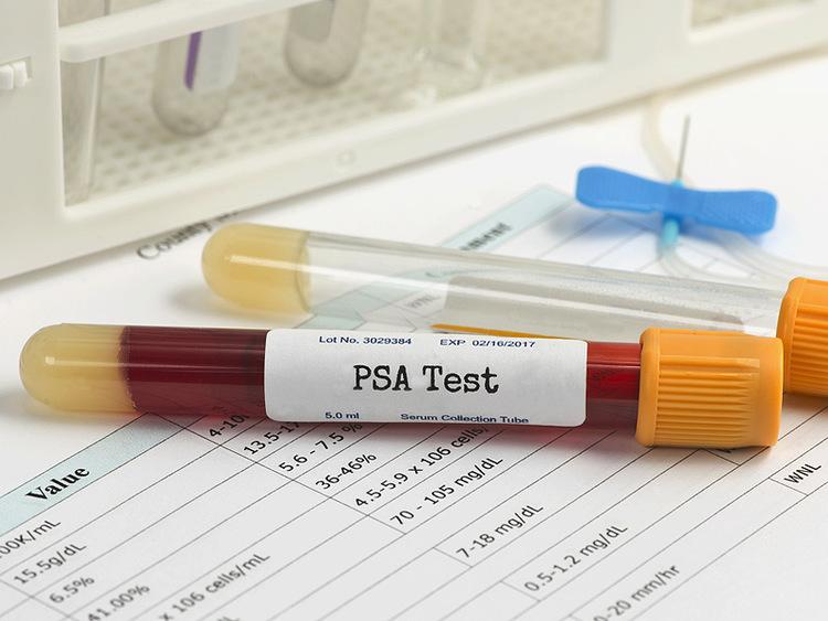 Нормальный анализ на PSA еще не означает отсутствие рака простаты