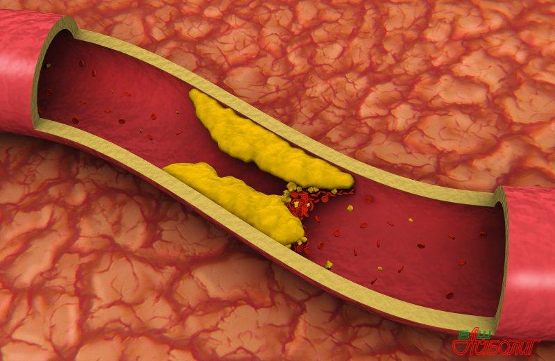 Повышенное содержание холестерина в рационе может увеличивать риск рака молочной железы