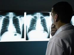 В Британии число некурящих, больных раком легких, удвоилось за 10 лет