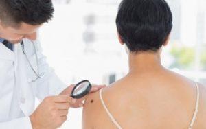 Искусственный интеллект может упростить диагностику меланомы