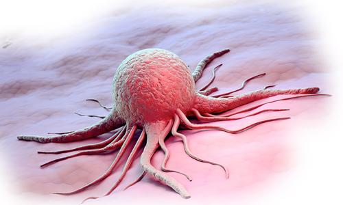 Распад опухоли — это хорошо или плохо?
