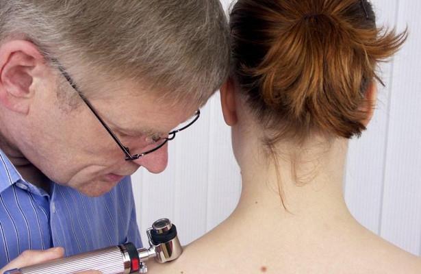 Успех лечения меланомы предскажут по уровню метаболитов в крови
