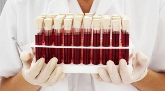 Тесты на онкомаркеры назвали крайне неэффективными